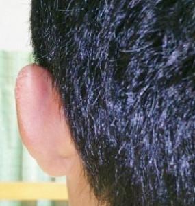 腫れた耳・虫さされ