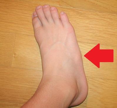子供 足の痛み